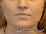 Jaw Slimming Botox